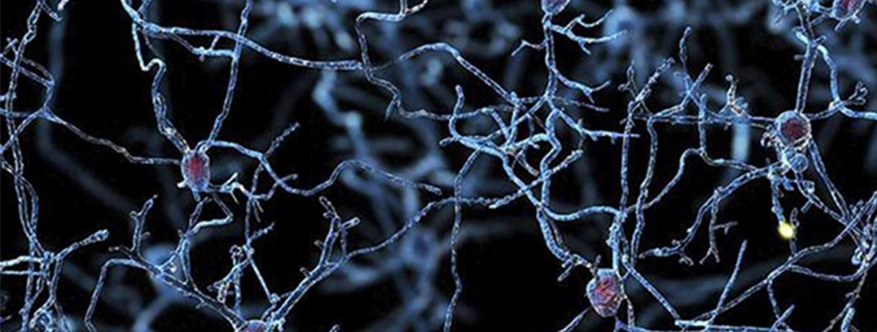 neuroscience-alzheimers